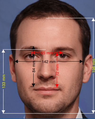 Lower: Full Face Midface ratio